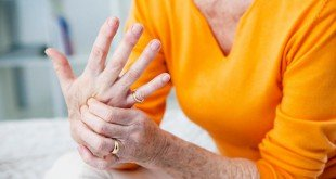 10 sane regole per combattere l' artrite