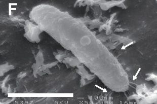 Ideonella sakaiensis