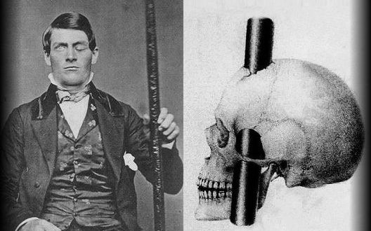 Phineas Gage, storia di un incidente