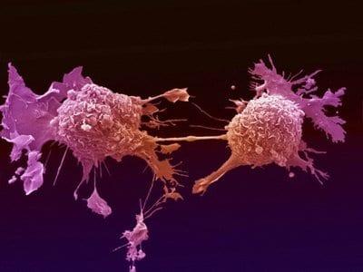 Il cancro ai testicoli