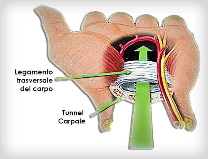 la sindrome del tunnel carpale