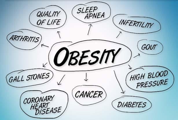 obesità in Italia
