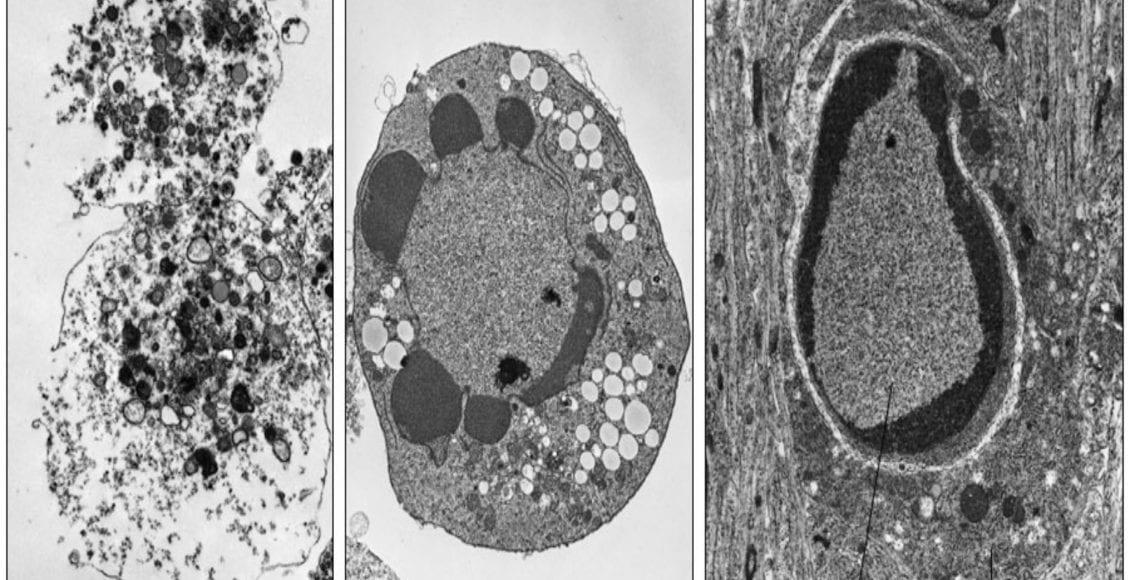 morte cellulare: apoptosi e necrosi a confrontio