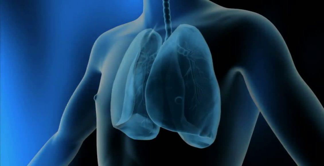 La broncopneumopatia cronico ostruttiva (BPCO) è una condizione cronica dei polmoni caratterizzata da un'ostruzione delle vie aeree.