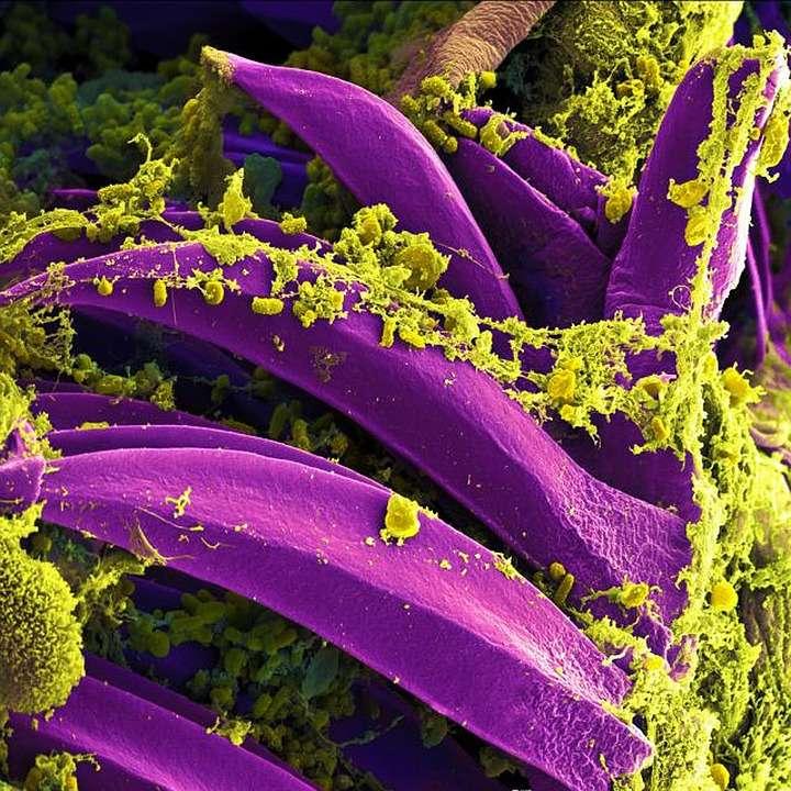 Biofilm e quorum sensing: ecco come comunicano i batteri