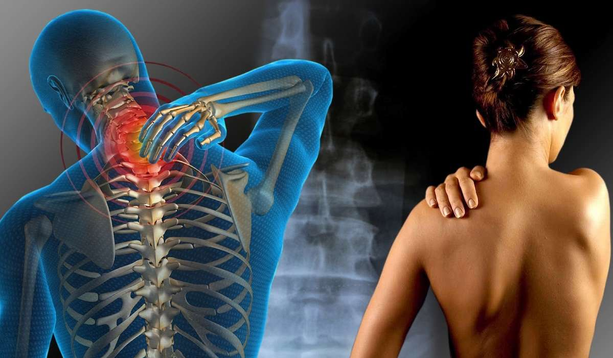 terapia caldo freddo per il dolore muscolare