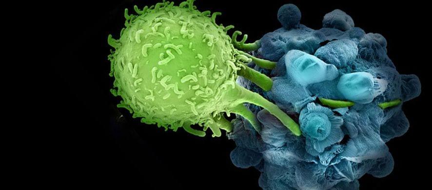 CAR-T contro il Neuroblastoma
