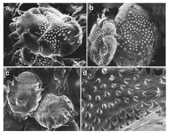 Micrografie elettroniche a scansione della femmina di Sarcoptes scabiei var. hominis