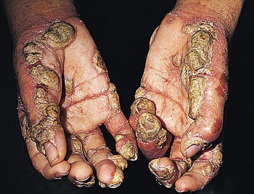Scabbia incrostata: placche ipercheratosiche prominenti e noduli sui palmi dei pazienti