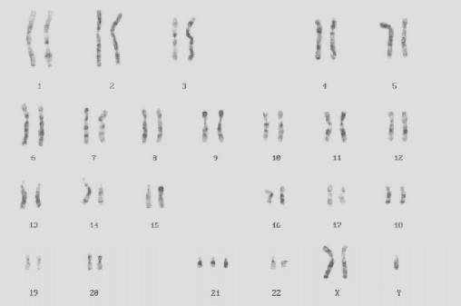 Patrimonio cromosomico di individuo affetto da trisomia 21