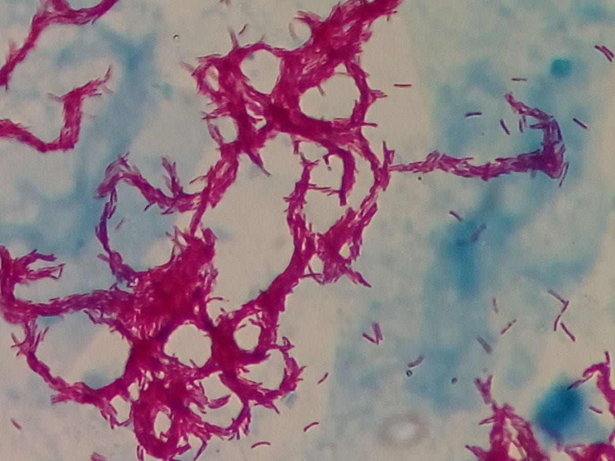 M. tubercolosis e antibiotico resistenza
