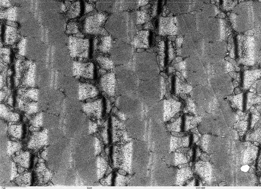 Striatura del muscolo scheletrico al microscopio