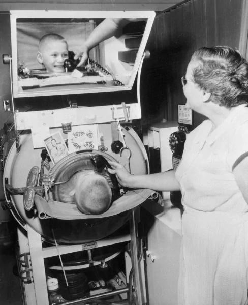 Bambino affetto da Poliomielite, costretto dentro un polmone d'acciaio