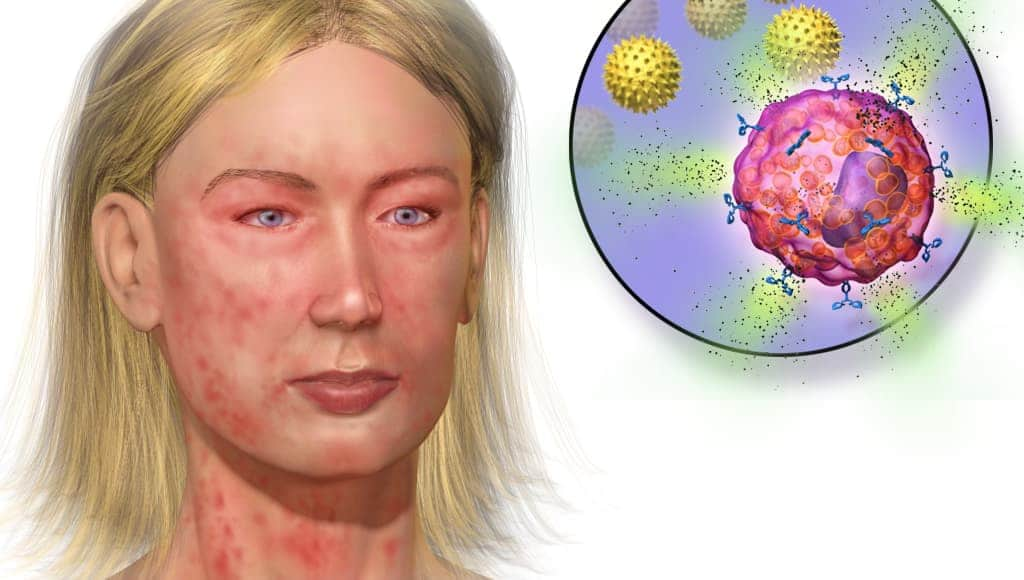 reazioni allergiche