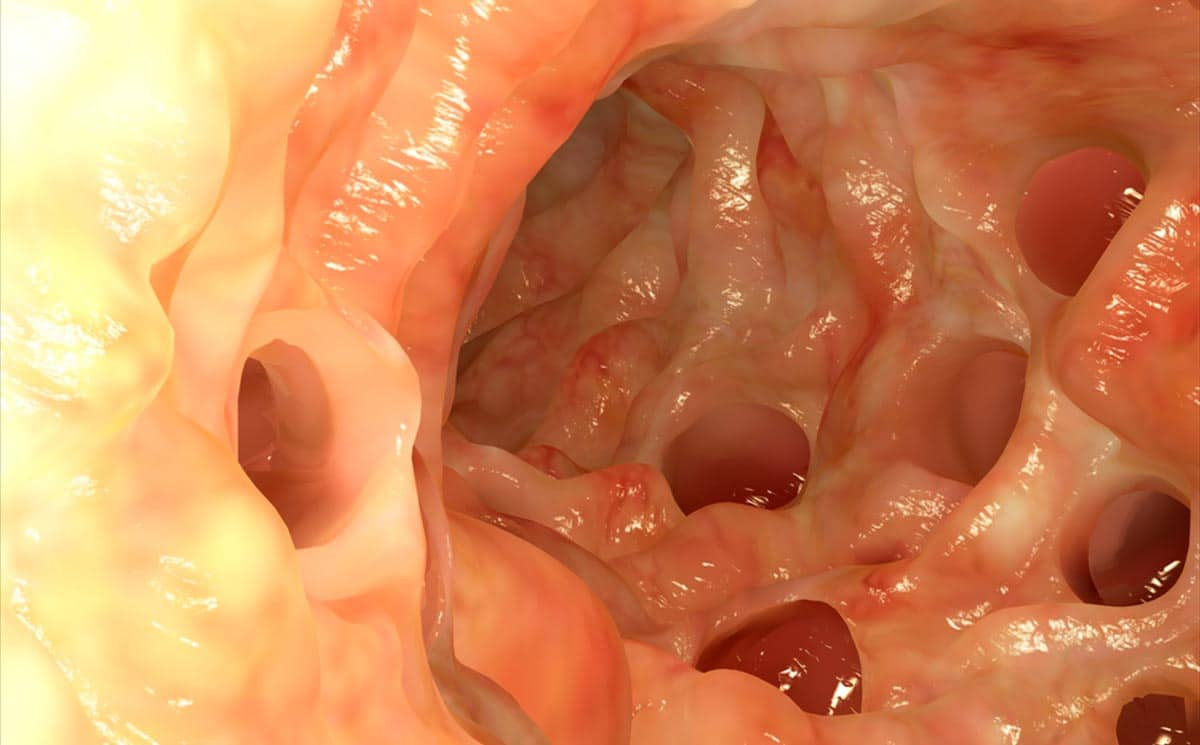 diverticolosi e diverticolite