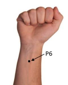 Localizzazione anatomica del punto P6