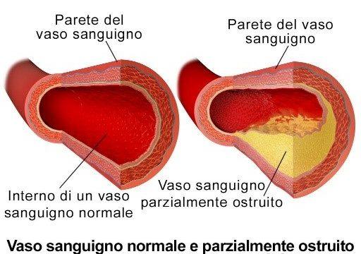 Placche aterosclerotiche o ateromi