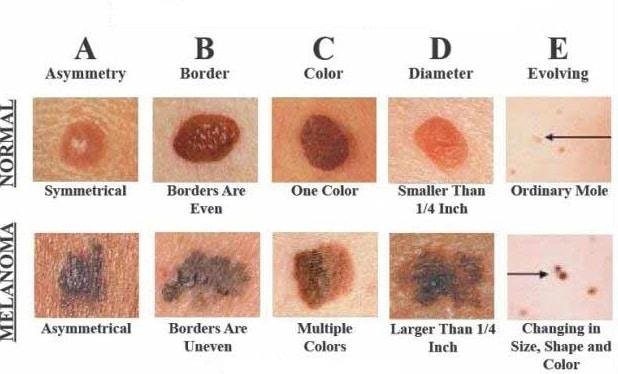 metodo ABCDE melanoma