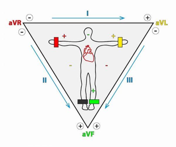 triangolo Einthoven